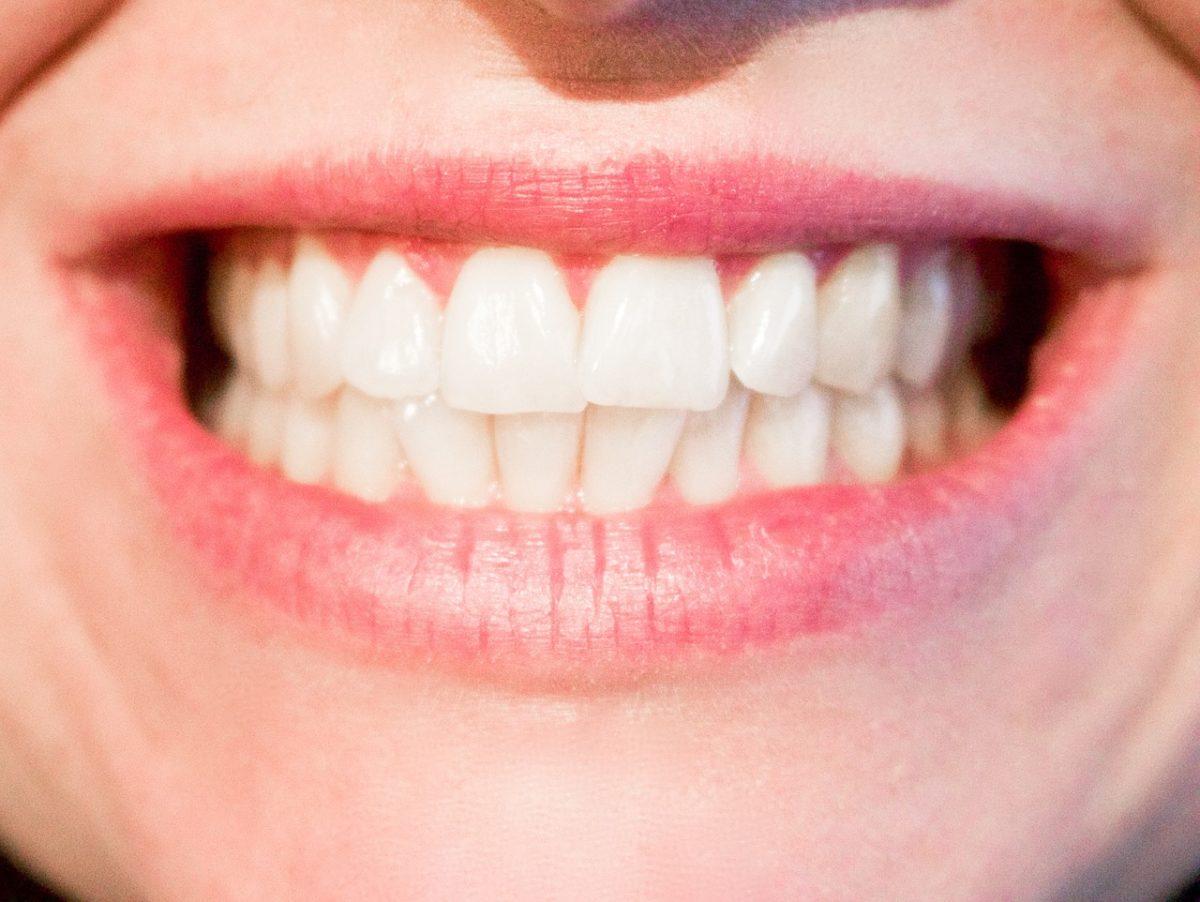 Nowoczesna technika używana w salonach stomatologii estetycznej zdoła spowodować, że odbierzemy śliczny uśmieszek.